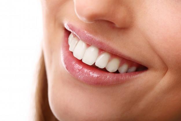 Entenda o que são facetas dentárias e os seus benefícios